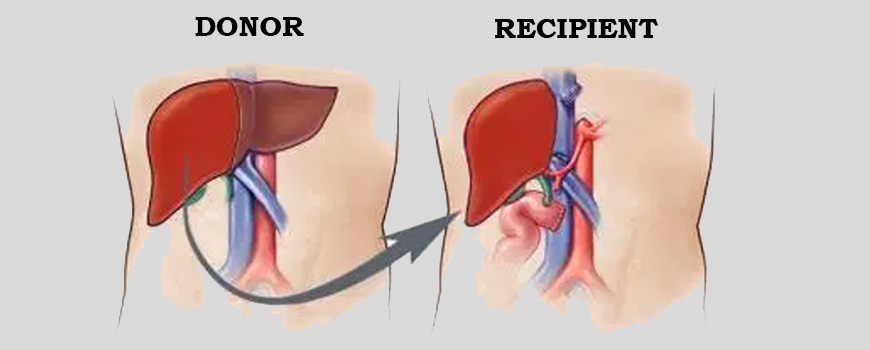 What is Liver Transplant