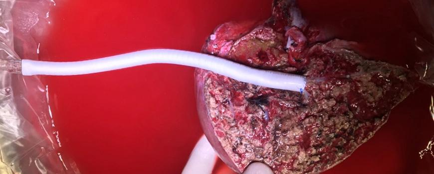 Living Donor Liver Transplantation