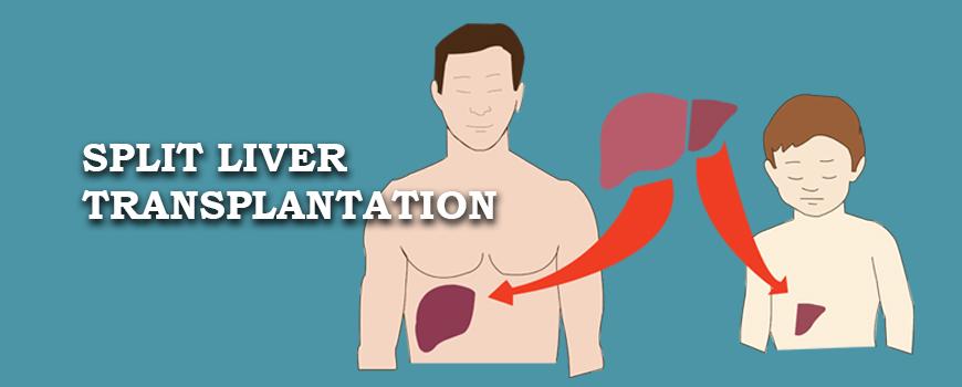 Split Liver Transplantation Kochi